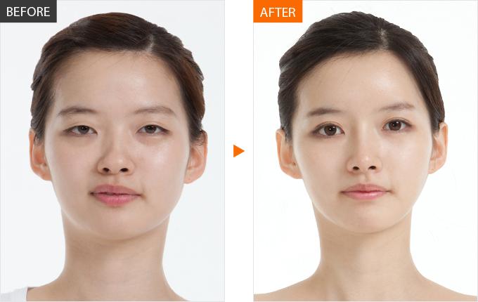 Sau thẩm mỹ Mở rộng góc mắt có bị sẹo không? Bác sĩ Thảo