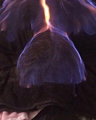 Làm đẹp với phương pháp đốt lửa cả người, cô gái nhận cái kết đắng